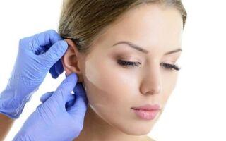 Причины образования шарика в мочке уха, характерные признаки и методы терапии