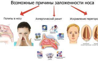 Заложенность носа или сухой насморк