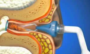 Как удалить серную пробку из уха перекисью водорода