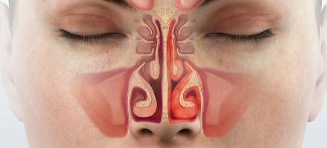Вазомоторный ринит: причины, симптомы, классификация, диагностика, лечение