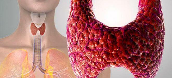 Гипоплазия щитовидной железы: причины, симптомы и методы лечения