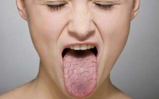 Сухость в горле: причины и лечение