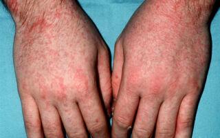 Особенности скарлатины у взрослых: симптомы, проявление и лечение