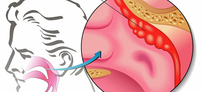 Лазерное удаление аденоидов у детей: подготовка и ход процедуры