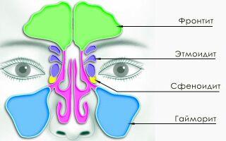 Гайморит у взрослых – симптомы и методы лечения