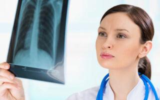 Причины появления хрипов в горле
