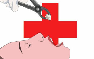 Обязательно ли удаление миндалин при хроническом тонзиллите?