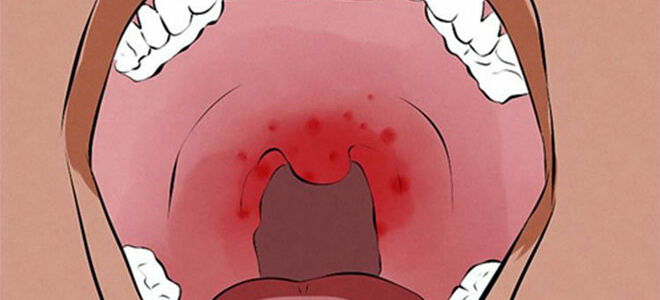 Красная сыпь в горле: причины и возможные заболевания