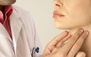 Что такое субклинический гипотиреоз, диагностика и лечение