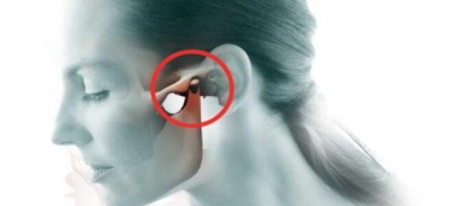 Ушная боль отдающая в челюсть