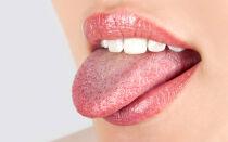 Прыщи в горле как симптомы заболеваний: причины, диагностика, способы лечения