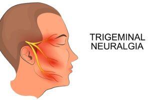 Воспаление тройничного нерва: причины, лечение, чем лечить, народные методы