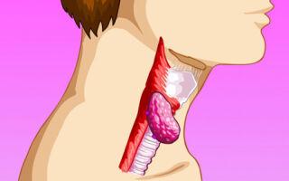Рак гортани на разных стадиях: первые признаки, диагностика и прогноз