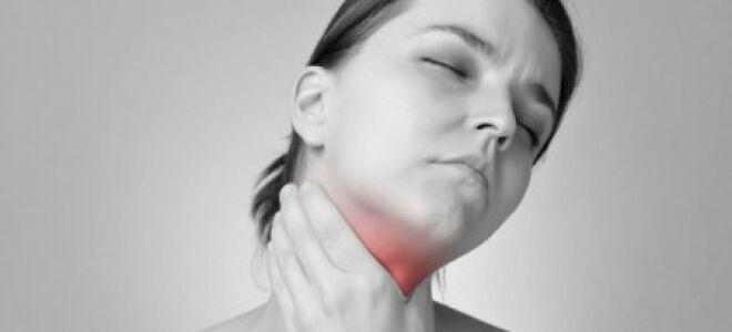 Этиология гнойной ангины: симптомы и лечение