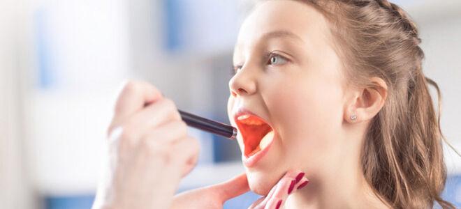 Распространённые болезни горла у детей и взрослых
