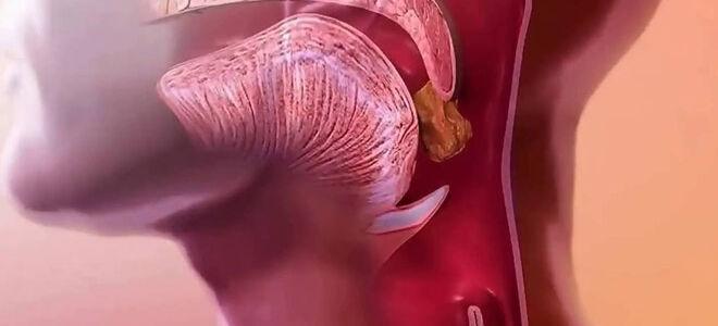 Еда застревает в горле: причины, симптоматика заболеваний, методы лечения