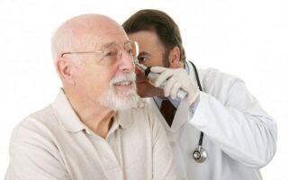 Кохлеарный неврит слухового нерва