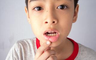Патологии полости рта: заразен ли стоматит?