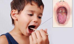 Причины появления белого налета на миндалинах у детей