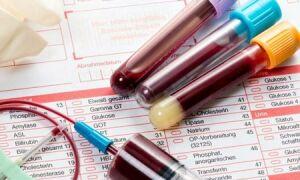 Диагностика гипотиреоза с помощью лабораторных исследований