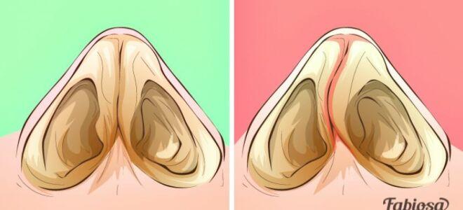 Как определить и когда лечить искривление носовой перегородки