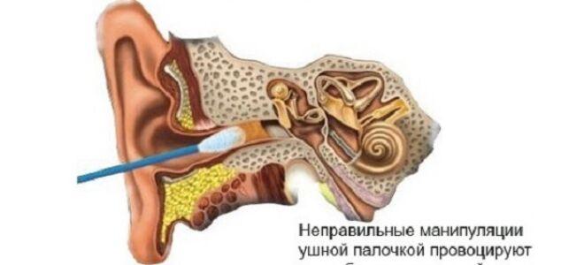Ушная пробка. Причины образования и лечение