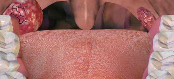 Чем полоскать воспаленное горло при ангине