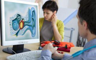 Виды лечения и подробная характеристика групп нейросенсорной тугоухости