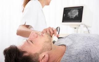 Первые признаки и симптомы гипотиреоза у мужчин, методы определения патологии