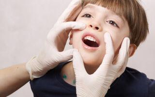 Герпетический стоматит у ребенка: как выявить и лечить заболевание