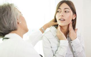Причины, симптомы и способы лечения тонзилитных пробок