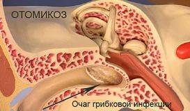 очаг грибкового поражения уха