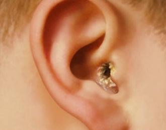 грибок в ухе