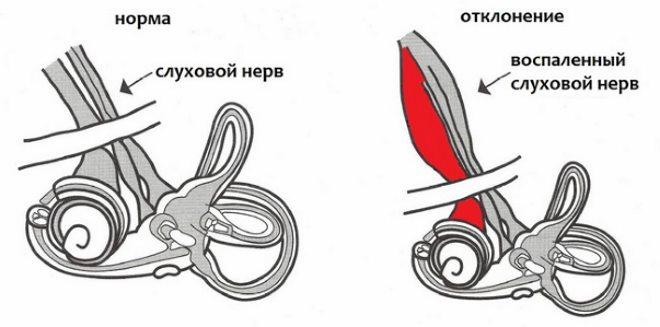 схема неврита слухового нерва