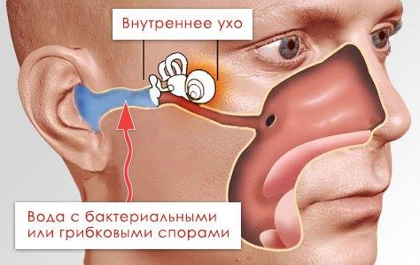 инфицирование уха