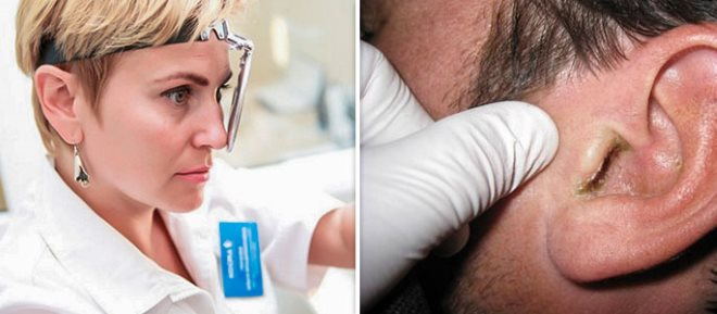 симптомы микоза уха
