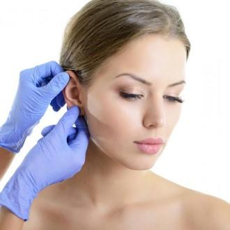 как прижать уши при лопоухости