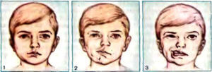 Спазм лицевых мышц