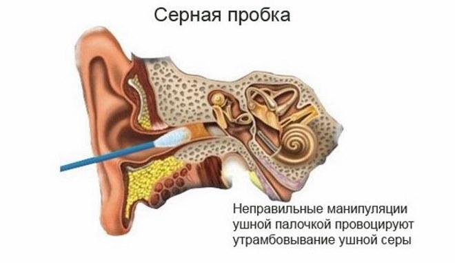 утромбование серы ушной палочкой