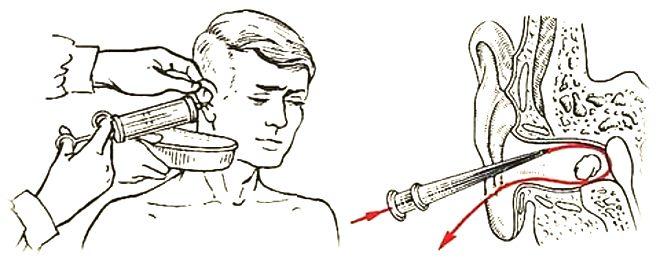 как правильно вымывать серу из ушей