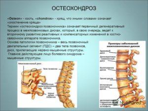 Позвоночный остеохондроз