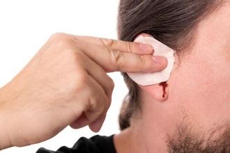 кровь из уха при разрыве