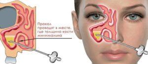 Прокол носовой пазухи