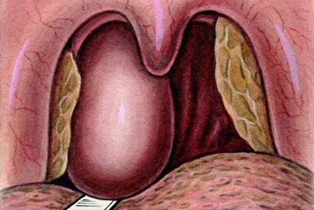 Абсцесс горла