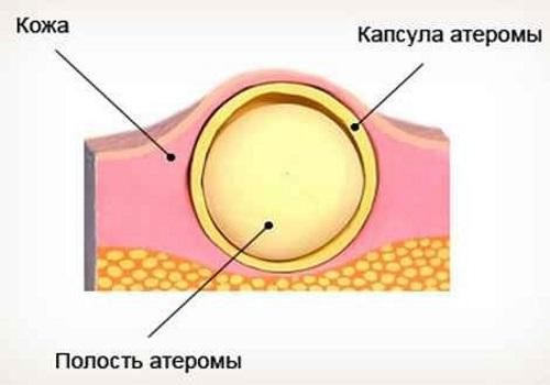 Атерома мочки уха