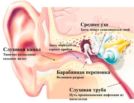 Болит горло и ухо
