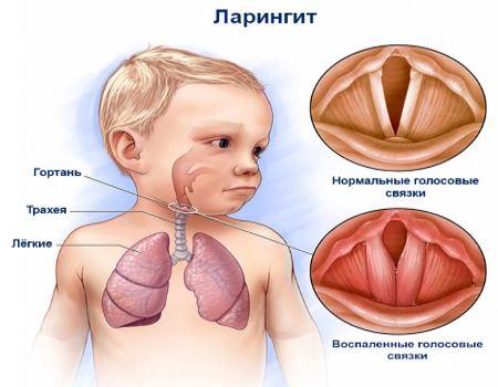 Детский ларингит
