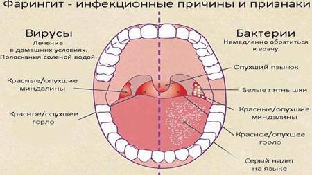 Фарингит вирусно- бактериальной природы