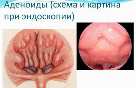 Хронический аденоидит