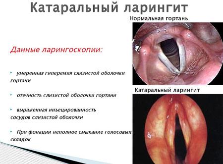 Хронический катаральный ларингит